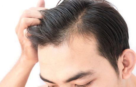 תקציר מחקר: השפעת טיפול בפלסמה עשירת טסיות לצמיחה מחודשת של השיער (PRP שיער)